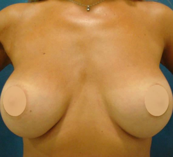 breast-01-meta