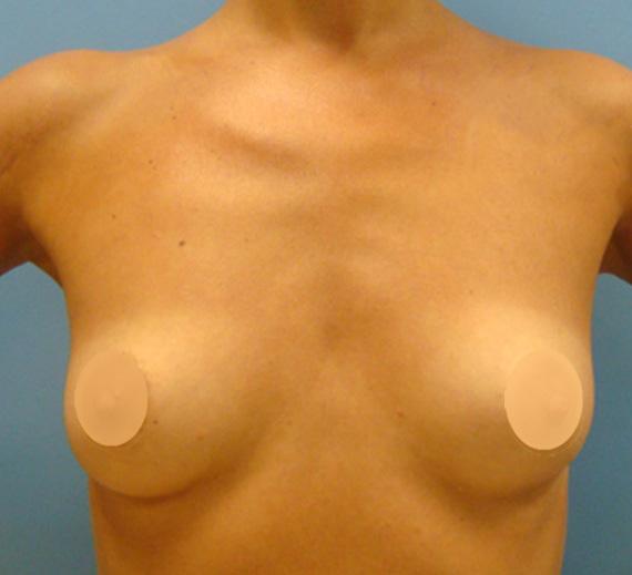 breast-01-prin