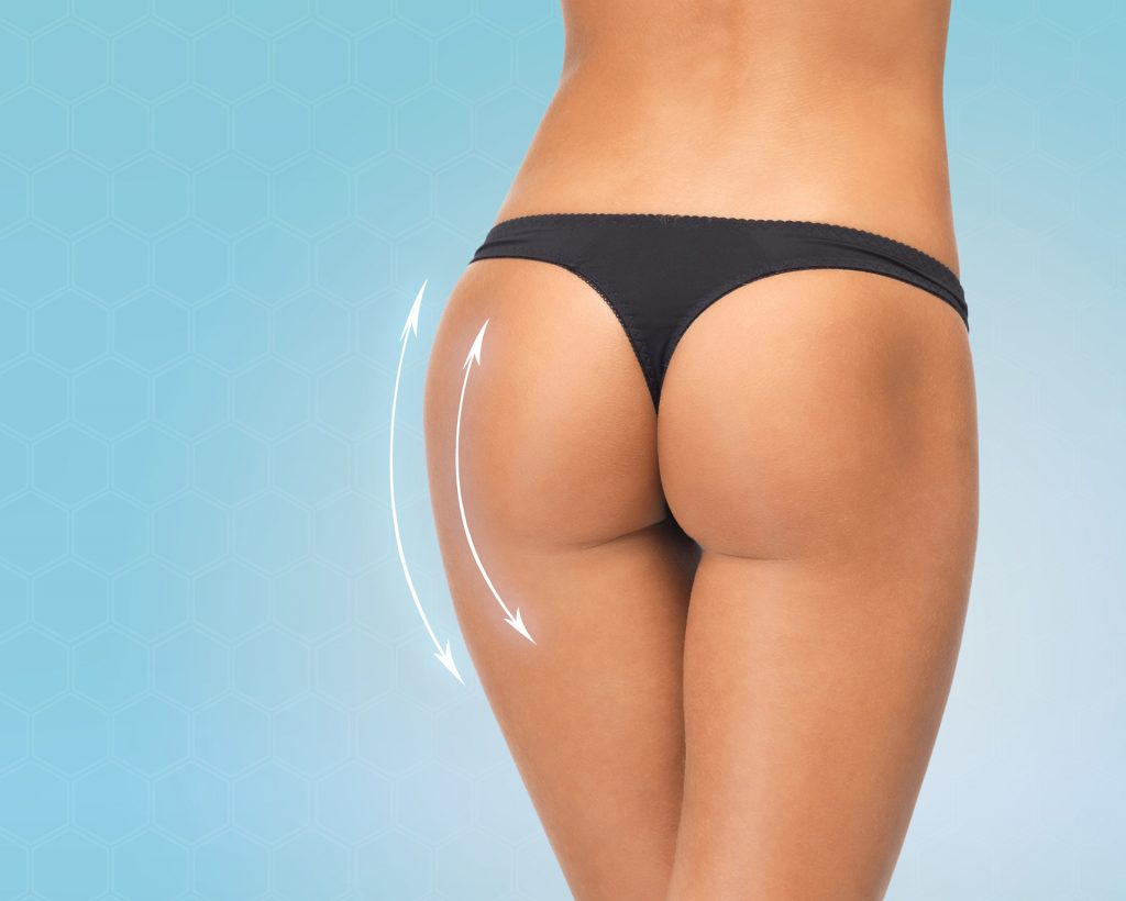 Brazilian butt lift is now less dangeroushere's why